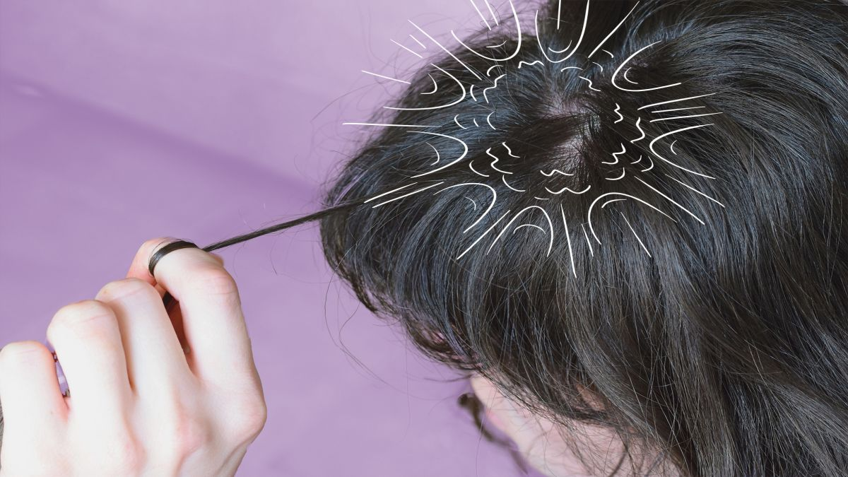 El scalp popping puede desgarrar fácilmente la parte interna del cuero cabelludo y ocasionar hemorragias o posibles infecciones.