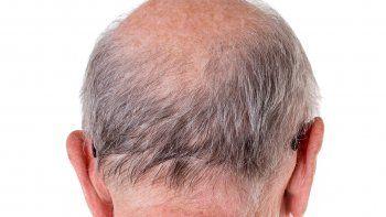 Un equipo de especialistas de Estados Unidos descubrió que el 79%de los pacientes hospitalizados tenían alopecia androgenética (Foto: portal Cutique de México).