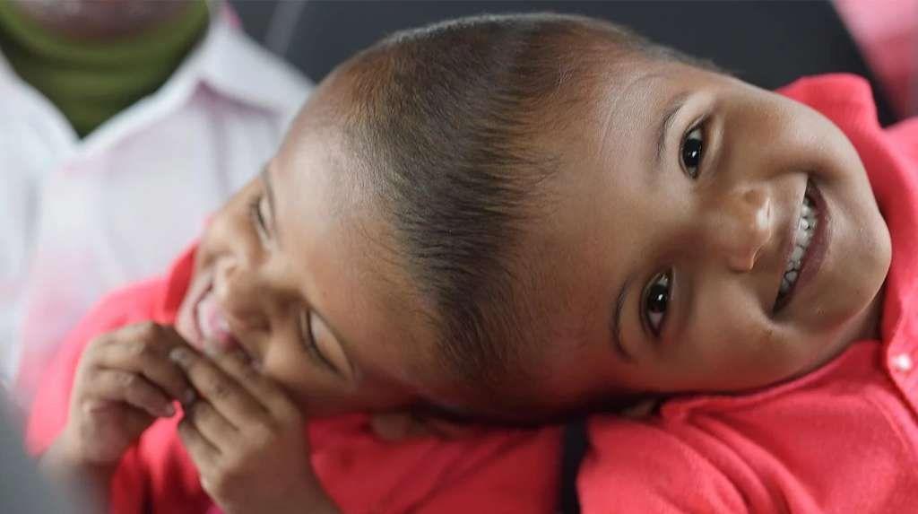 Dos nenas que nacieron unidas por la cabeza fueron separadas tras una maratónica operación