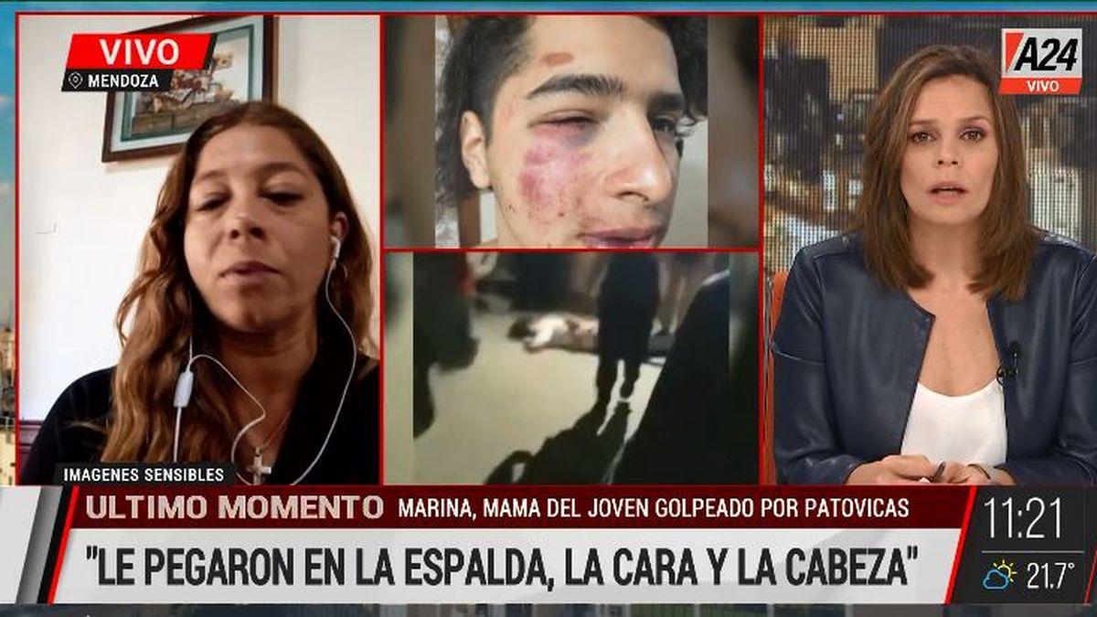 Mendoza: brutal golpiza a un joven de 19 años por patovicas. (Captura de Tv)