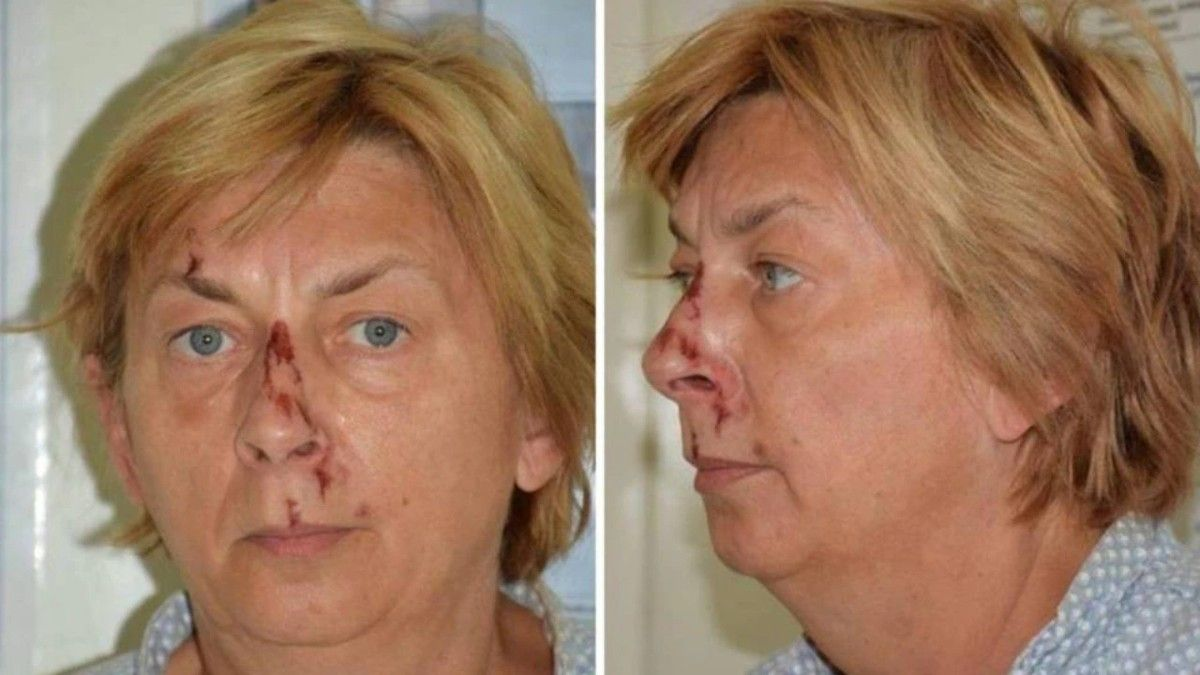 La mujer fue encontrada en zona rocosa de la isla de Krk